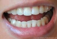 invisalign-update-oct-1309-without-aligners