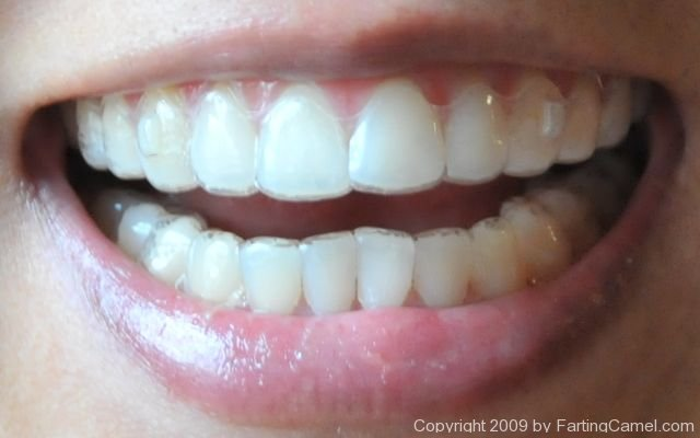 What do teeth look like after braces